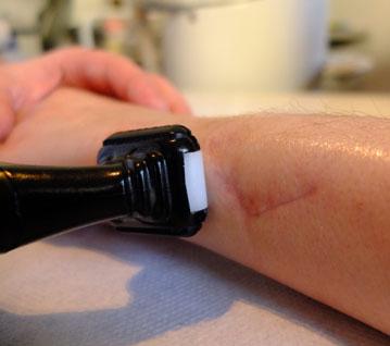 adhérence cicatrice main